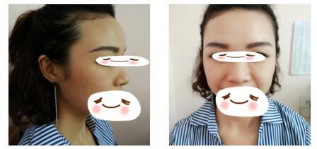 广州晨曦整形鼻综合案例 气质一下子就提升