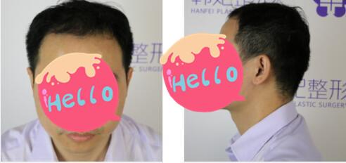 广州韩妃整形植发案例 术后5个月恢复心得分享