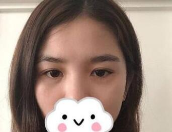 武汉五洲整形去眼袋案例 术后30天我眼袋已经不见了