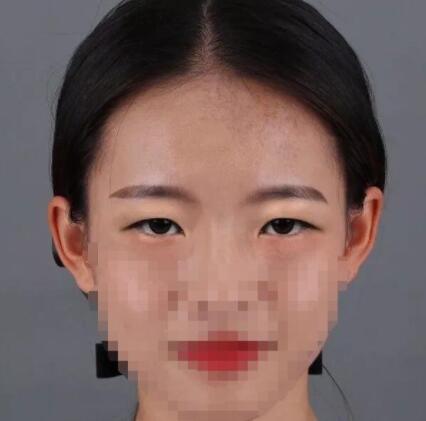 山东省立医院烧伤整形薛峰医生双眼皮案例 术后效果非常不错