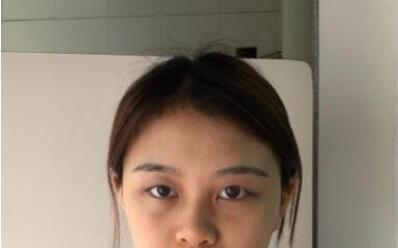 上海九院整形朱惠敏医生双眼皮案例 术后1个月分享自己美美的一面