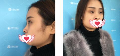 太原时光整形自体肋软骨隆鼻案例 术后的鼻型真心觉得满意