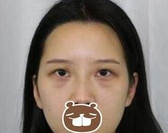 杭州117医院整形何冬梅双眼皮案例 医生技术不错 看蜕变图就知道
