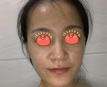 武汉亚太整形程晓林医生隆鼻案例 术后3个月恢复真的很好