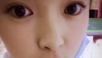 ?#26412;?#20843;大处整形郑若冰医生隆鼻案例 3个月后鼻子自然美观大方
