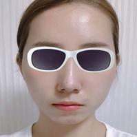 沈阳元辰整形歪鼻矫正案例 鼻子很有型