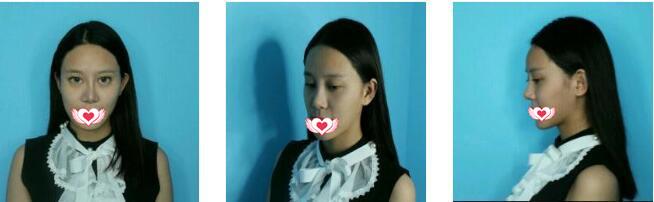 郑州星范整形做鼻部膨体假体取出案例 90天后鼻子恢复情况分享哟