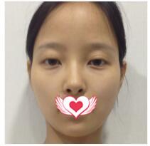 济南美辰整形做取颊脂垫瘦脸案例 150天后提升颜值过好年啊