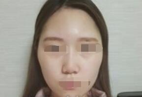 杭州维多利亚整形许凤芝医生面部轮廓案例 术后颜值变高很多了