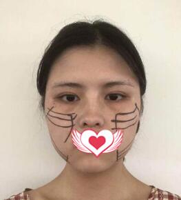 北京京韩整形张振做线雕提升案例 术后秒变小姐姐的经历