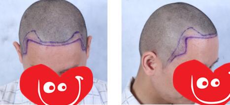 郑州美莱整形植发际线手术案例 术后2天的变化心得分享