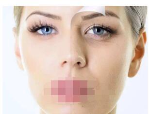 今日關注:選擇射頻除皺銳變