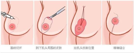 今日頭條:乳房下垂矯正不輕易松弛