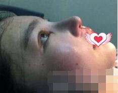 成都华西整形卿勇做鼻部综合术案例 术后鼻子自然才是美哟