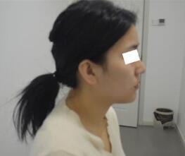 广州曙光整形做隆?#21069;?#20363; 术后3个月时间拥有一个翘鼻子