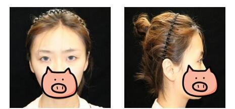 西?#19981;?#32654;整形割双眼皮案例 自然地双眼皮就是好看
