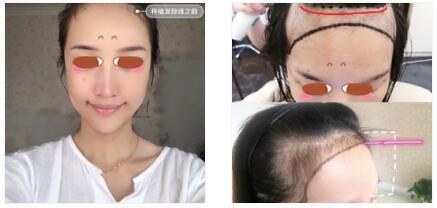 杭州科发源龙都整形植发案例 好满意脸也变小了