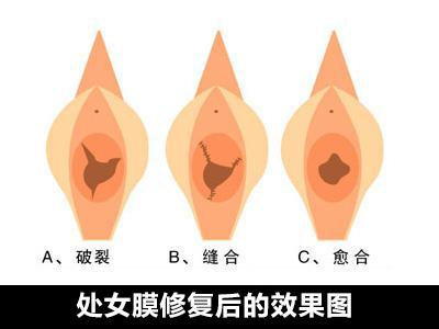 處女膜修復術前要做的一些檢查