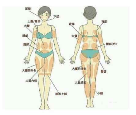 全身吸脂后容易發生感染嗎