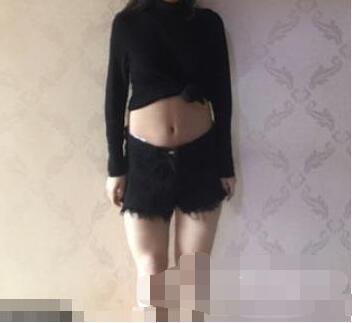 濟南芭莎美恩整形腰腹吸脂+大腿吸脂手術案例 術后變化不錯