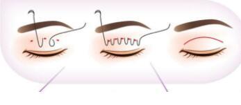 切雙眼皮手術五大好處