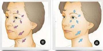 今日特寫:電波拉皮除皺一個星期恢復