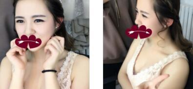 南寧華美整形自體肋軟骨隆鼻案例 術后3個月的變美日記