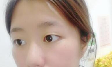 河北醫大二院整形張卓男醫生雙眼皮案例 術后的風格我很喜歡