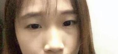 南京醫大二附醫院整形李昌醫生雙眼皮案例 術后25天了看看下吧