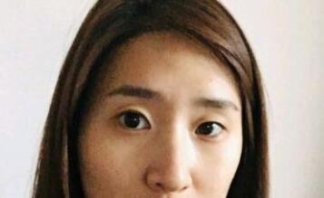 北京大學深圳醫院整形李開石醫生雙眼皮案例 術后15天來分享了