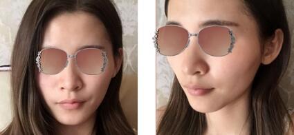 南寧韓成整形隆鼻案例 期待我的鼻子美麗蛻變