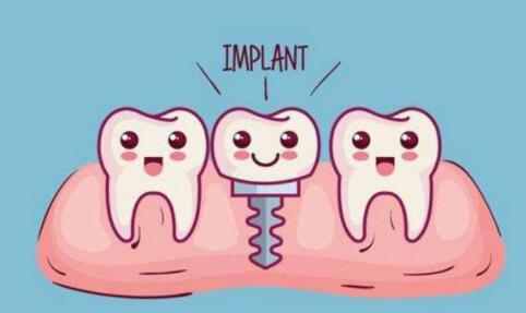 分享下種植牙的材料