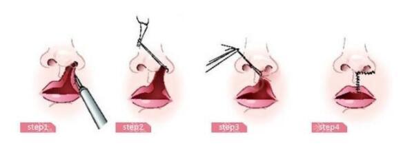 唇裂修復的五大原則