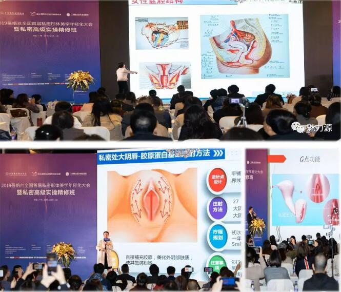 2020全國第二屆私密形體美學年輕化大會3月在廣州召開