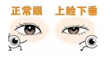 上瞼下垂的三種治療方式看看哪種更好