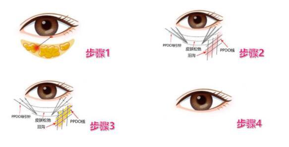 真空抽脂去眼袋不會出現反復腫脹的情況