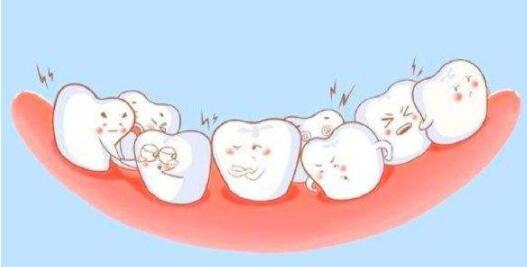 牙齒矯正后反彈的幾率每個人都是相同的嗎