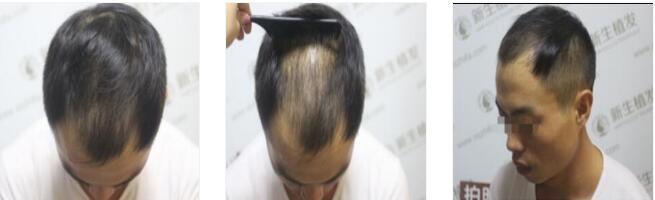 成都新生植发整形做发际线种植案例 快来围观我的恢复经历