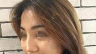 上海華美整形謝衛國醫生硅膠假體隆鼻+耳軟骨墊鼻尖案例 分享心得