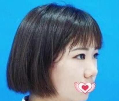 上海九院整形戴傳昌醫生隆鼻案例 術后3個月弧度流暢又很自然