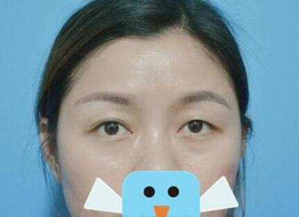 上海華美整形楊亞益醫生雙眼皮修復案例 術后一個月恢復不錯哦