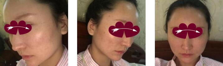 上海愉悅美聯臣整形面部輪廓案例 術后1個月的恢復分享