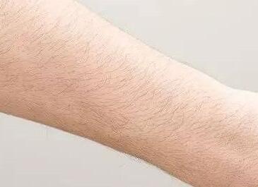 手臂激光脱毛需要进行三到六次才能彻底