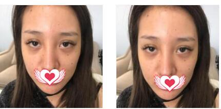 杭州美莱整形做水光针注射案例 术后第1个月恢复得很不错
