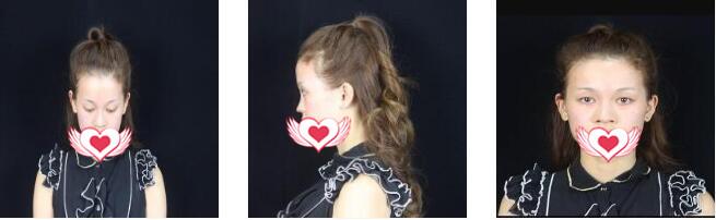 武漢新至美整形聶祝鋒做鼻部綜合術案例 術后第2月鼻子恢復很好