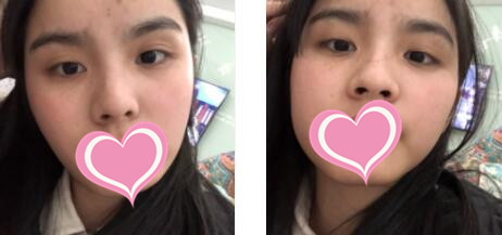 重慶時光整形隆鼻手術案例 術后變美心得分享歷程