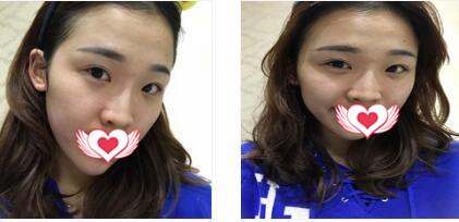 重慶華美整形做膨體隆鼻案例 術后第11月反饋我蝶變的效果歷程