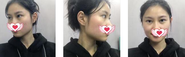 廣州曙光整形做玻尿酸墊下巴案例 術后30天反饋一點痕跡沒留變美