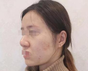 哈爾濱科美整形果酸換膚祛痘案例 術后半年后了皮膚超好的