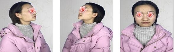 武漢華美整形付國友醫生下頜角整形案例 感覺自己又美出一道天際